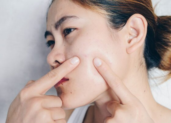 effective-home-remedies-for-acne